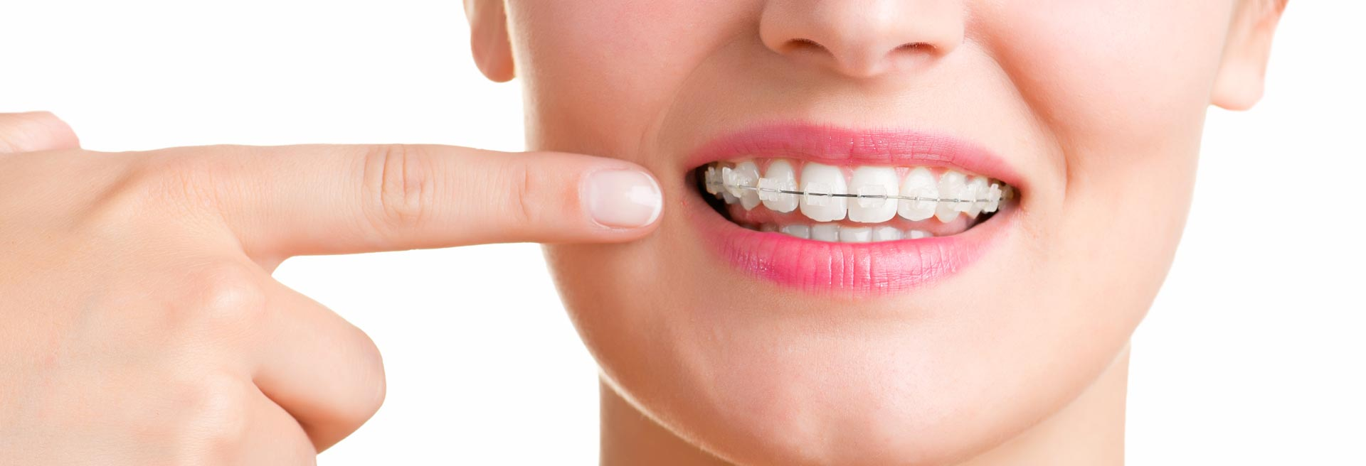 South Calgary Dental Braces | Shawnessy Smiles Dental