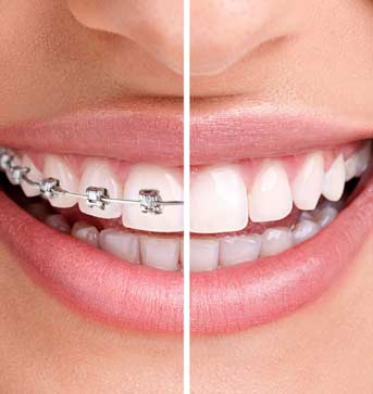 Shawnessy Smiles | South Calgary Dentist | Orthodontic Dentistry