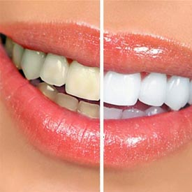 South Calgary Teeth Whitening | Shawnessy Smiles Dental